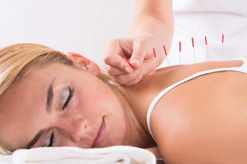 Acupuncturists